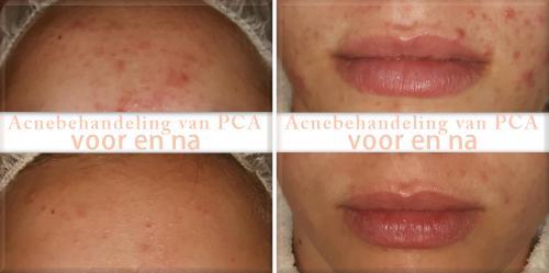 voorbeeld-acne